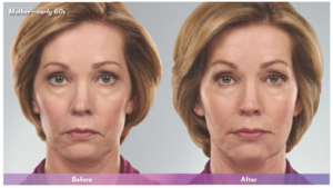 indianapolis juvederm before and after photos