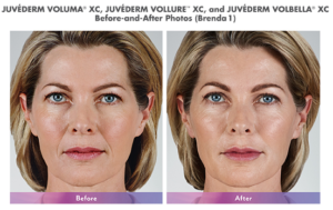 juvederm products before and after results