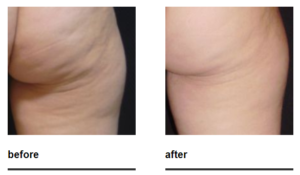 z-wave cellulite treatment before and after