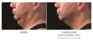 double chin reduction before and after