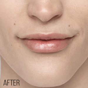 natural-looking lip enhancement indianapolis