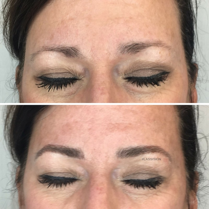 d3c7867a4f3 Microblading - Laser and Skin Surgery Center of Indiana