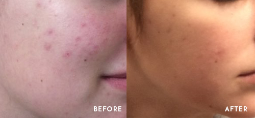 Acne Treated with Accutane