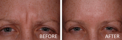 best botox in indianapolis