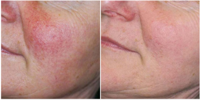 before and after rosacea IPL photofacial treatment