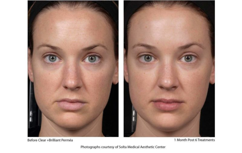 before and after clear and brilliant laser treatment pictures
